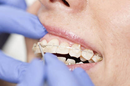 Orthodontics - Consumer NZ