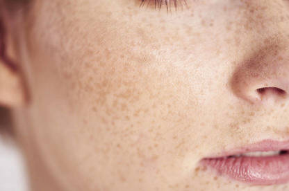 Close-up of freckled face.