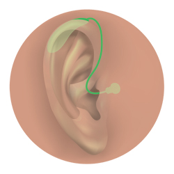 BTE open-fit hearing aid.