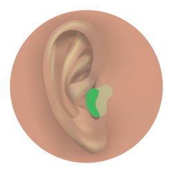 In-the-canal (ITC) hearing aid.
