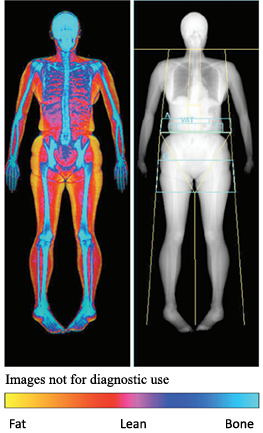 Colour scan detailing fat, leanness and bone mass.