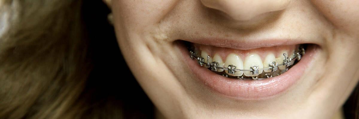 16aug orthodontics hero