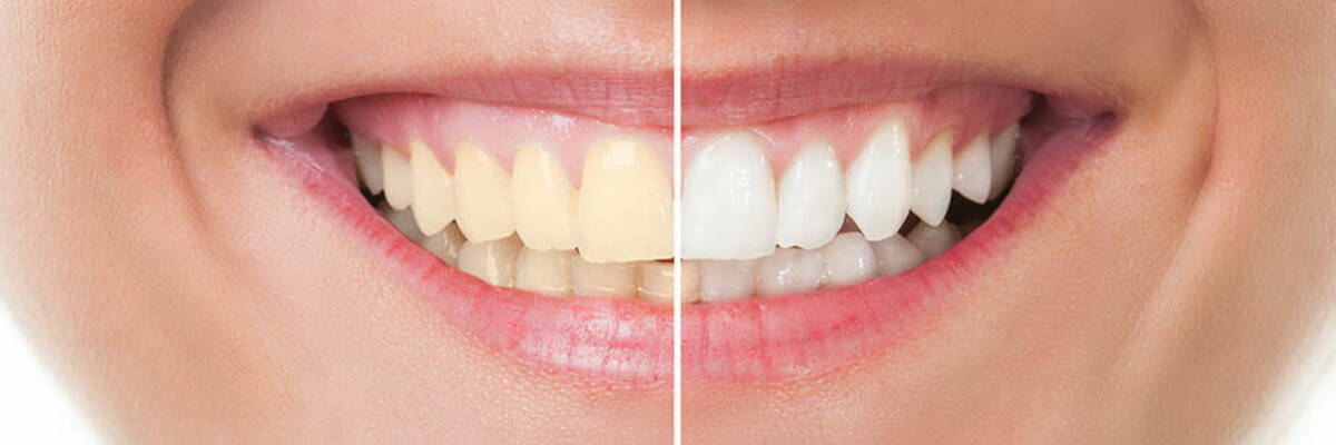 Smile showing before and after of teeth whitening.