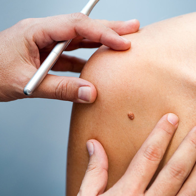 First Look: Skin cancer smartphone apps - Consumer NZ