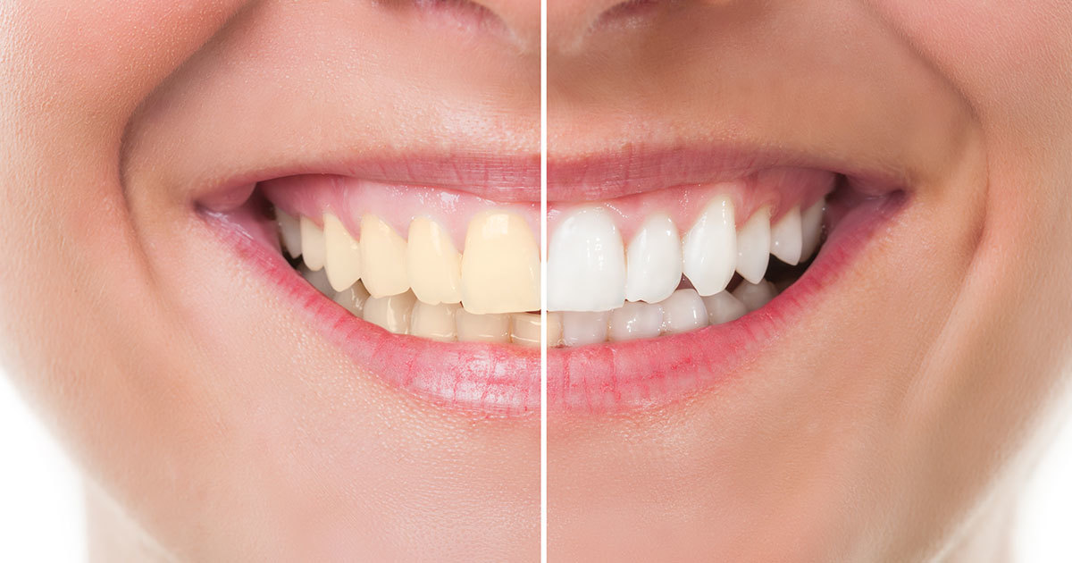 How Effective Are Teeth Whiteners Consumer Nz