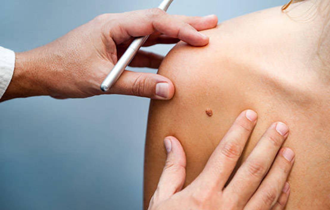 17sep skin cancer apps promo